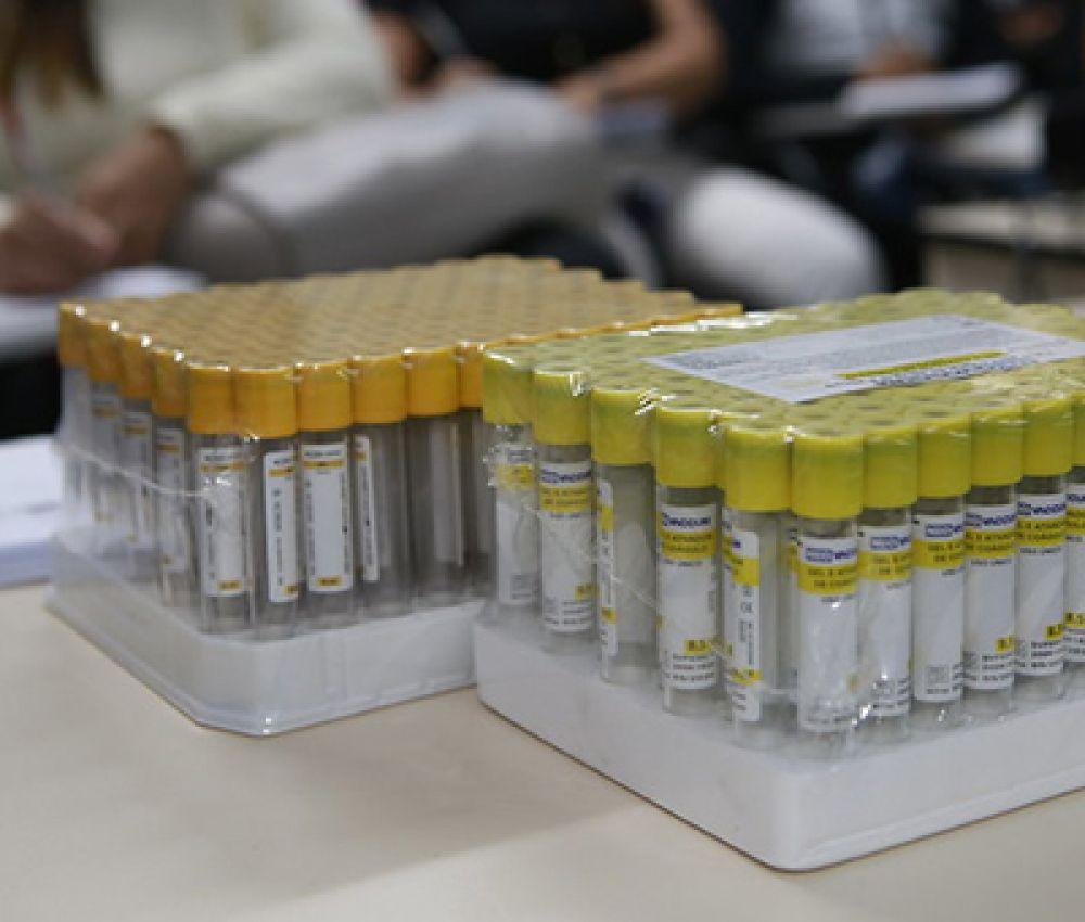 Prefeitura reativa sorologias de HIV, Hepatites e Sífilis, por meio do Laboratório Municipal
